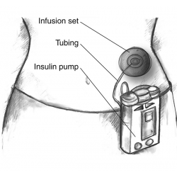 С инсулинова помпа